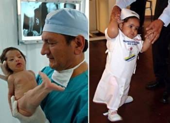 Milagros åtte dager etter hun ble født, og da hun tok sine første skritt etter sin andre operasjon for å skille bena. (Foto: PAOLO AGUILAR, ©epl HL)