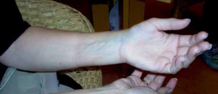 Hanne-hånd