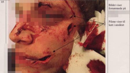 DYPE KUTT: Slåsskamper med knuste glass og flasker gir stygge skader, og kan være livsfarlig.