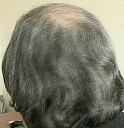 AVSLØRTE MAFIAEN: - Jeg lever i dekning, uten beskyttelse, med en fare hengende over hodet mitt fra de som tidligere passet på meg, sier avhopperen Francesco Fonti som frykter for sitt liv etter avsløringer om mafiaens giftdumping.