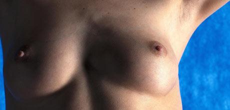 sår på kjønnsleppene titrengt hele tiden