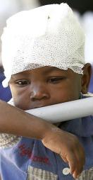 BARN LIDER: Bildet viser en gutt fra Haiti som ble skadet under   jordskjelvet tirsdag 12. januar. Han har heldigvis fått behandling ved   universitetssykehuset de la Paix i Port-au-Prince. Jordskjelvet kan ha   tatt livet av over 200.000 mennesker og rammer et land som allerede herjes   av AIDS, tuberkolose og malaria. (Foto: REUTERS/Daniel Aguilar )