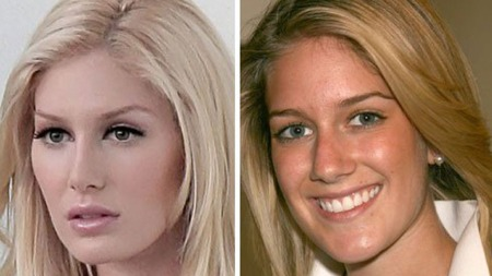 NY: Heidi Montag slik hun så ut før- og etter operasjonene