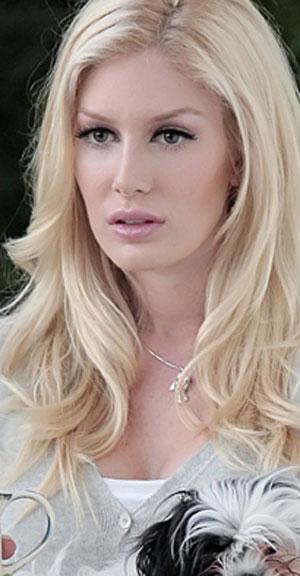 BEDRE?: Heidi Montag var ikke fornøyd med utseendet sitt