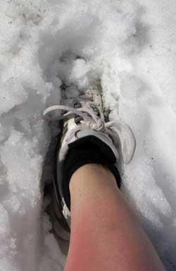 På skitur med bare legger? Da kan det ende som dette dersom du ikke beskytter deg... (Foto: olveig Vikene / SCANPIX)