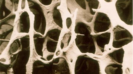 Så porøse blir knoklene når man lider av beinskjørhet.