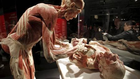 Plastifiserte kropper utsilt som hjertekirurg og pasient. (Foto: FOCKE STRANGMANN/AFP)