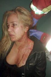 BLODIG: Sandra Isaksen ble tatt hånd av ambulansepersonell like etter hendelsen. (Foto: Privat, ©Privat)