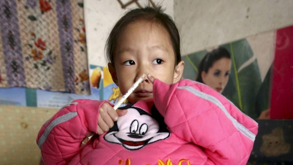 Yunxing er fire år. Magen hennes har vokst uforklarlig siden hun var baby. Nå håper familien på å finne noen som kan hjelpe henne. (Foto: STRINGER SHANGHAI/Reuters)