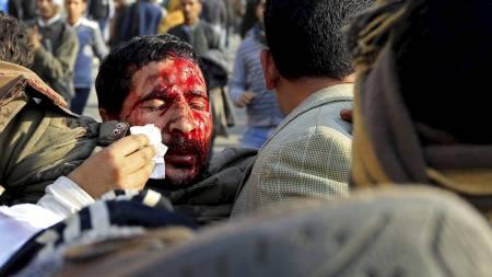 BLODIG: En skadd demonstrant får vasket vekk blod fra ansiktet.   Torsdag morgen meldes det at minst 800 personer har blitt skadd i gatekampene.   (Foto: GORAN TOMASEVIC/Reuters)