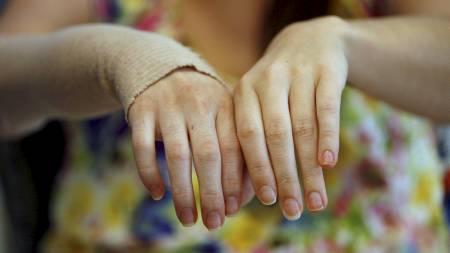 Den nye hånden til Emily er svært lik hennes egen.  (Foto: HO/Reuters)