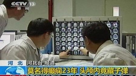 FANT KULE: Kinesiske leger fant en kule i hjernen på pasienten som skulle få hjelp for epilepsi. (Foto: CCTV/AP)