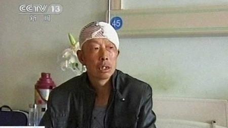 OPERERT: Wang Tianqing har levd med en kule i hjernen i over 20 år, nå er den fjernet. (Foto: CCTV)