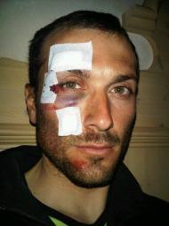 Ivan Basso falt under trening og skadet ansiktet. (Foto: Ivan Basso)