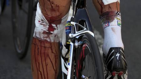 Slik så beina til Johnny Hoogerland ut da han kom i mål på den niende etappen. (Foto: Laurent Rebours/Ap)