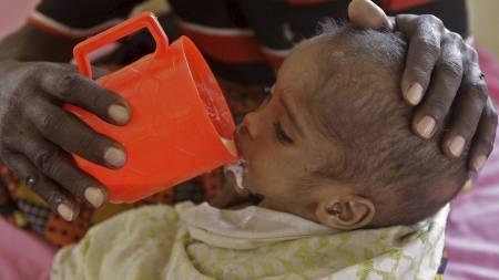 TRENGER HJELP: En far mater sitt underernærte barn ved et feltsykehus   i Dadaab i Kenya. Leiren er designet for 90.000 mennesker, men huser   nesten 440.000 flyktninger. (Foto: Schalk van Zuydam/Ap)