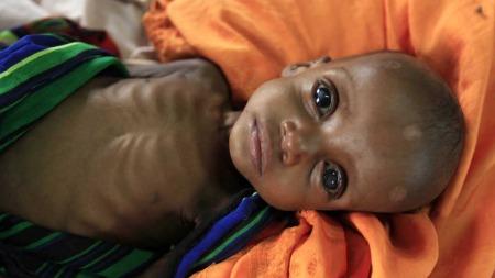 UTSETTER INNSAMLINGEN: Den afrikanske union (AU) utsetter et møte som skulle samle inn penger for å hjelpe de sultrammede på Afrikas Horn. Allikevel sier AU i en kunngjøring at det haster med humanitær bistand.  (Foto: THOMAS MUKOYA /Reuters)