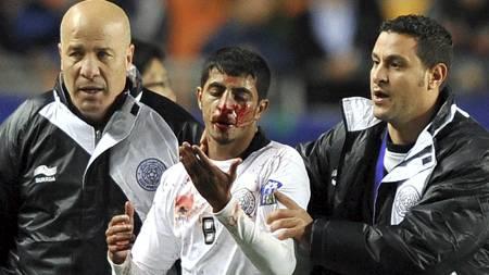 Al Sadds midtbanespiller Mesaad Ali eskorteres av banen med blodig nese etter at det brøt ut slåssing i kampen mot Suwon i den asiatiske mesterligaen. (Foto: JUNG YEON-JE/Afp)