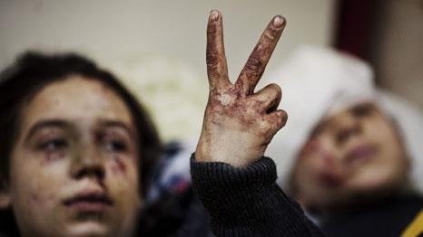 PEACE: Hana (12) og Eva (13) viser fredstegnet til fotografen mens de ligger skadet på sykehuset i Idlib i Syria. Faren og to søsken ble drept da huset deres ble bombet av Assad-regimet.  (Foto: Rodrigo Abd/Ap)