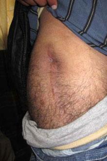 «Adnan» ble holdt fanget i to uker. Daglig i seks av dagene   ble han banket opp av vaktene. (Foto: Amnesty International)