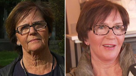 FØR OG ETTER: Bjørg Braaten (67) var lei av å dekke til halsen sin. Hun trosset risikoen og la seg under kniven.  (Foto: God morgen Norge)