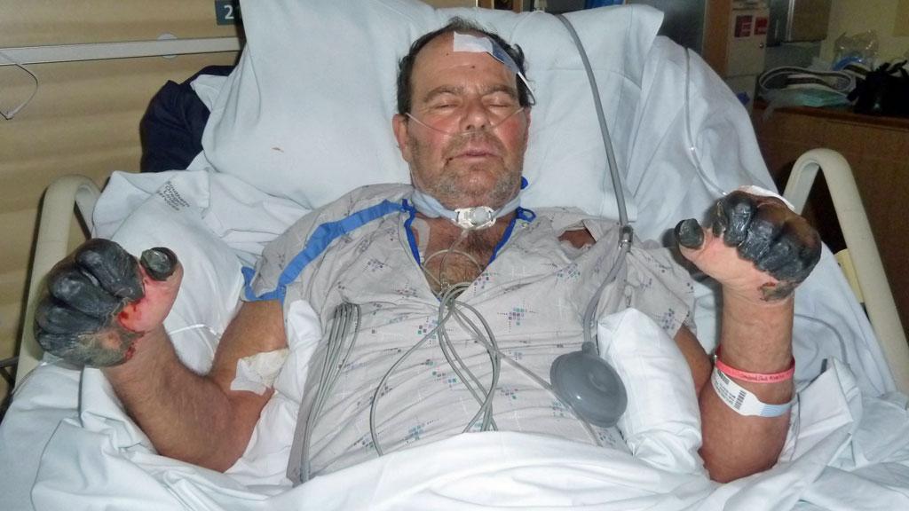 De svarte lemmene til Paul viser med all tydelighet hvor alvorlig sykdommen byllepest kan være. Dette bildet er tatt av familien mens han var under intensivbehandling. (Foto: AP)