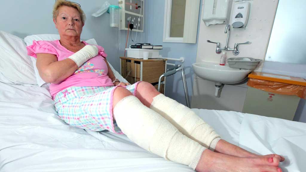 SKADD: Linda Saunders og to andre vart alvorleg skadd etter at  hunden deira gjekk berserk og angreip dei alle tre. (Foto: SWNS.com/Scanpics)