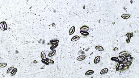 Slik ser barnemarkegg ut når de er forstørret i mikroskop. (Foto: Folkehelsa)