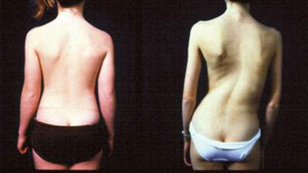 SKJEV RYGG: Her illustreres hvordan skoliose ser ut.  (Foto: Illustrasjonsfoto)
