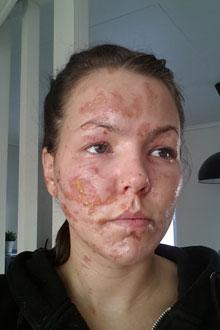 sår i ansiktet