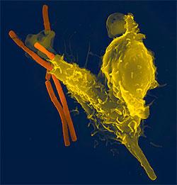 Her spiser et hvitt blodlegeme, farget gult, opp en bakterie. (Foto: Wikimedia Commons)