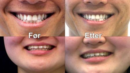 Før- og etter-bilder etter 14 dagers test. (Foto: TV 2 hjelper deg)