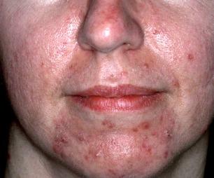 VANLIGSTE FORM FOR ROSACEA: Type to er den mest utbredte formen for sykdommen. (Foto: Derma Hudlegesenter )