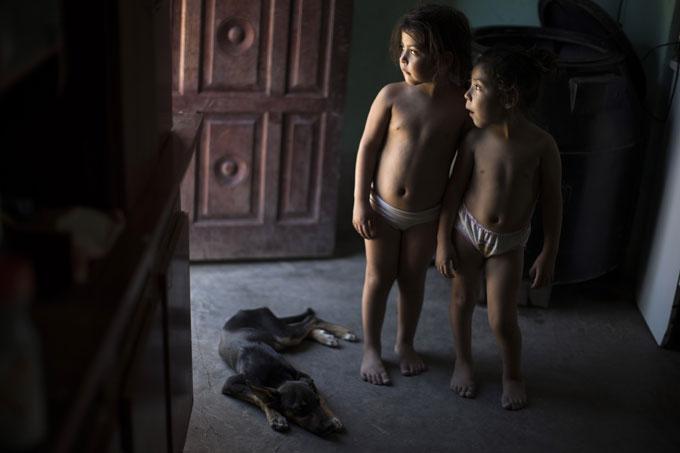 SYKE: Tvillingene Erika og Macarena lider begge av kroniske luftveisproblemer. Moren er for fattig til å sørge for at de får rent drikkevann. (Foto: AP Photo/Natacha Pisarenko)