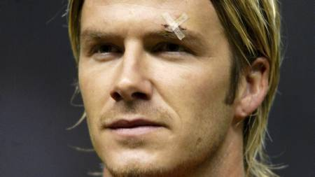 File photo dated 19/02/2003 of A plaster visible over the left eyebrow of Manchester United mid-fielder David Beckham. (Foto: Martin Rickett/Pa Photos)