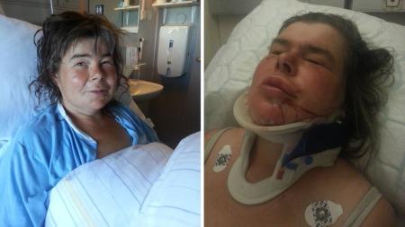 Her er Anne Beate fraktet til sykehuset, der hun måtte sy flere sting i bakhodet og fjeset. (Foto: Alex Iversen/TV 2)