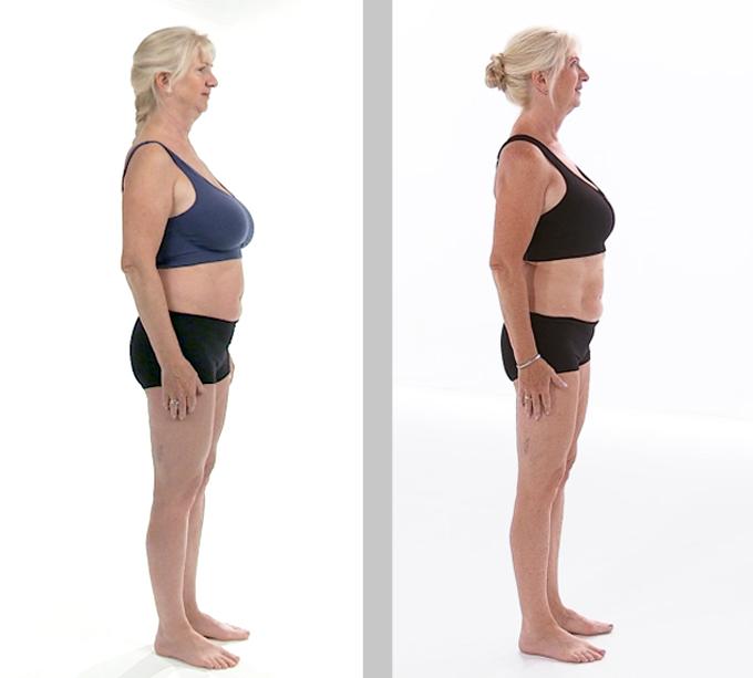 FØR OG NÅ: Anne Grethe var ikke overvektig, men med trening   og riktig kosthold fikk hun en strammere kropp, mindre fett og mer muskler.   (Foto: TV 2 Sporty)