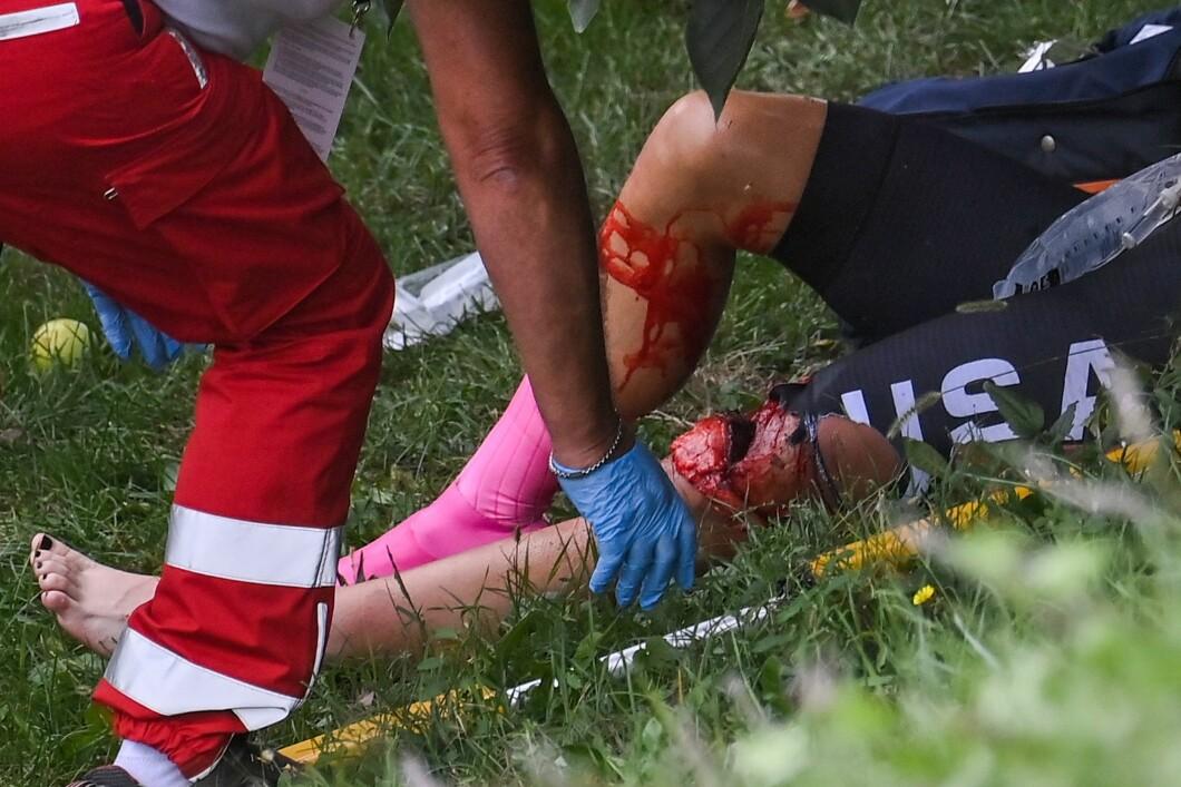TERRIBLE INJURY: Dygert-Owen's knee was cut open by the crash barrier. Photo: Marco Bertorello / NTB